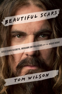 Beautiful Scars, A Memoir with Tom Wilson